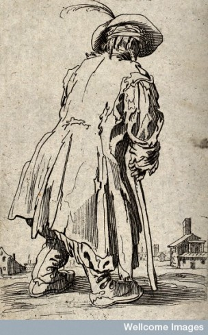 """A beggar dressed in rags, limping with the aid of a staff towards a village."" Etching possibly after Jacques Callot. Wellcome Library, London. Copyrighted work available under Creative Commons Attribution only licence CC BY 4.0"